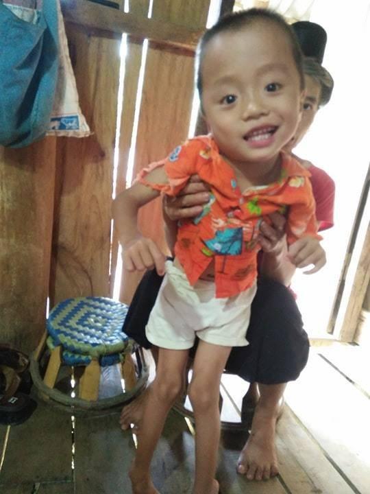 Bị mẹ tìm mọi cách phá bỏ từ trong bào thai, bé trai H'Mông 5 tuổi khuyết tật vẫn khát khao ước mơ đến trường - Ảnh 1