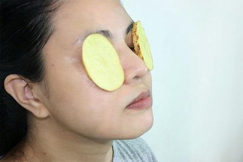 Áp dụng ngay các bí quyết làm đẹp với khoai tây xóa tan thâm quầng mắt nhanh chóng