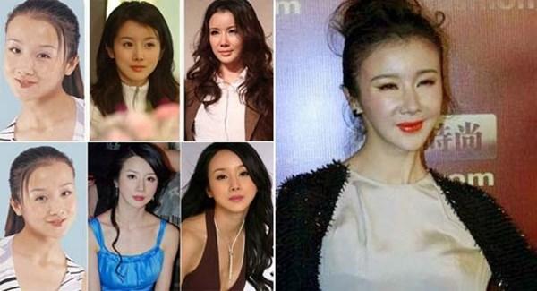 Mặt biến dạng vì lạm dụng dao kéo, sao nữ Hoa ngữ khiến fan nuối tiếc vẻ đẹp trong sáng ngày xưa - Ảnh 10