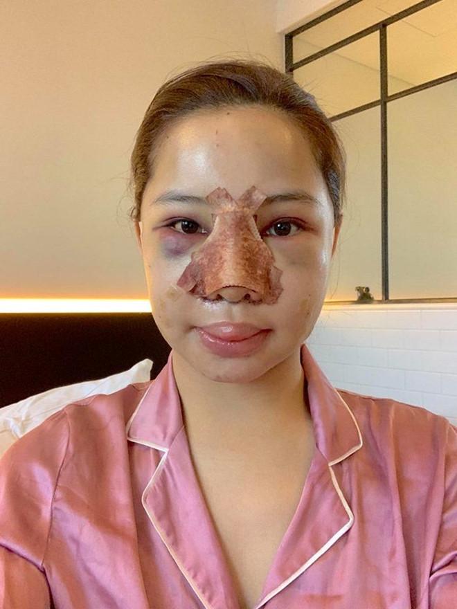 Lưu Đê Ly công khai phẫu thuật thẩm mỹ toàn bộ gương mặt - Ảnh 1