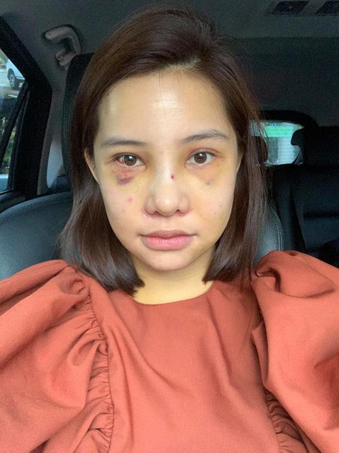 Lưu Đê Ly công khai phẫu thuật thẩm mỹ toàn bộ gương mặt - Ảnh 2