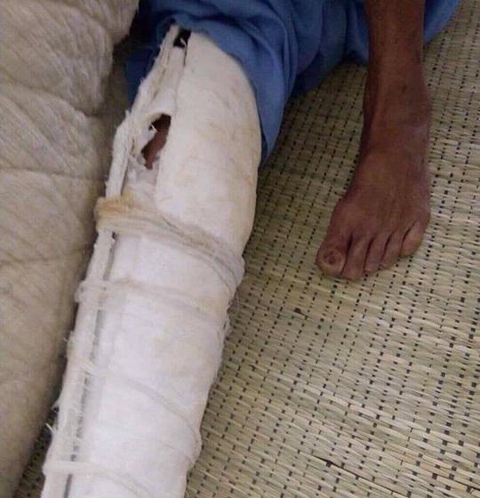 Rò rỉ vụ con đánh cha gãy xương sườn, mẻ xương chân, bầm tím khắp người vì nguyên nhân không ai ngờ tới - Ảnh 3