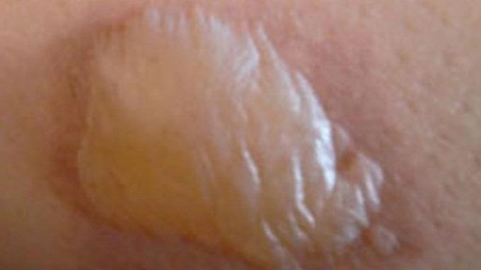 Khi bị bỏng bô xe máy, hãy làm ngay điều này để vết bỏng không loang lổ và tuyệt đối không để lại sẹo thâm trên bắp chân - Ảnh 5
