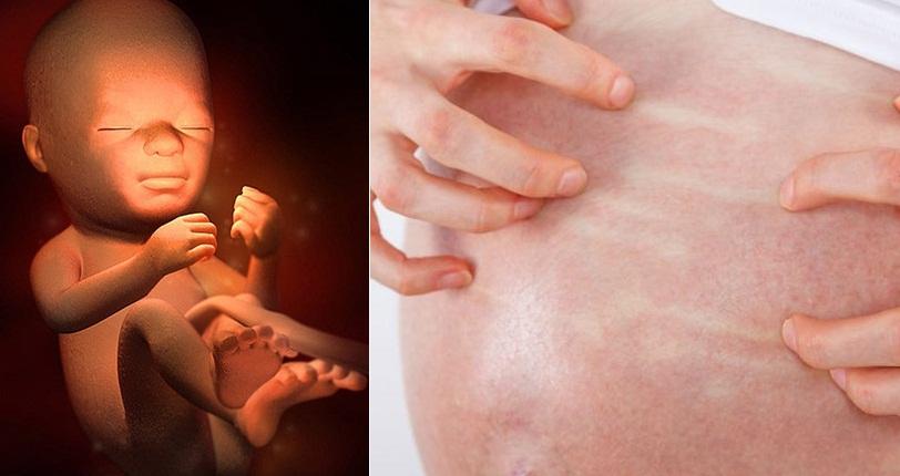 13 dấu hiệu báo động thai nhi đang cầu cứu trong bụng mẹ - Ảnh 1