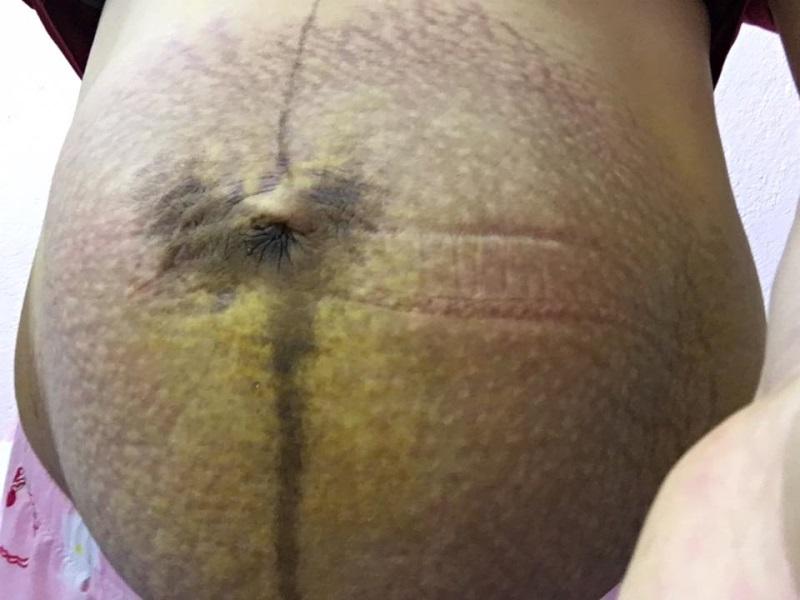 Xót xa hình ảnh những chiếc bụng bầu rạn da đến rỉ máu