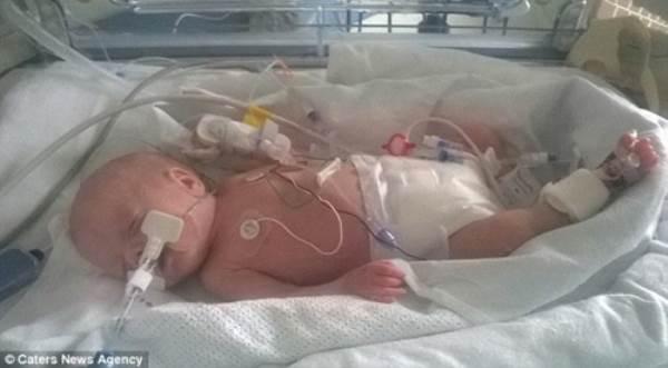 Chuyện ly kỳ về những đứa trẻ chào đời khỏe mạnh từ cơ thể người mẹ đã chết - Ảnh 4