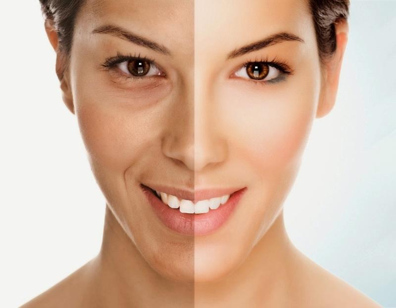 Kiên trì sử dụng dẫn xuất vitamin A giúp chăm sóc da mặt chống lão hóa