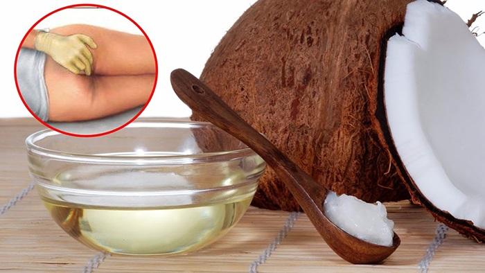 Cách chữa bệnh trĩ bằng dầu dừa thoa trực tiếp lên vùng điều trị