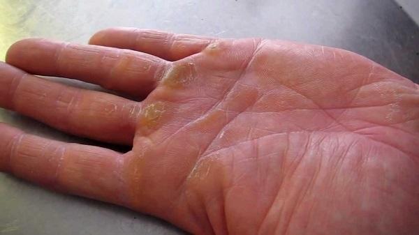 Chai tay khiến đôi tay cùa bạn xấu xí và cần chữa trị ngay