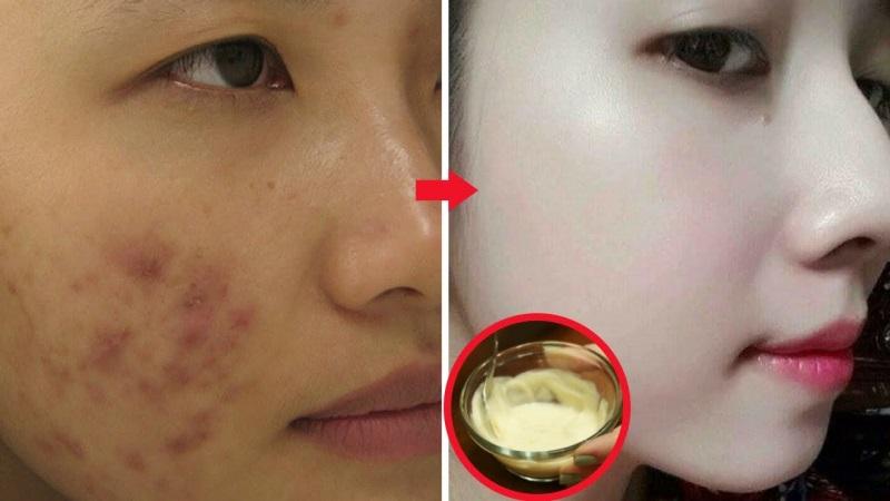Thoa kem trộn dưỡng da giúp trị mụn hiệu quả và cách áp dụng đơn giản