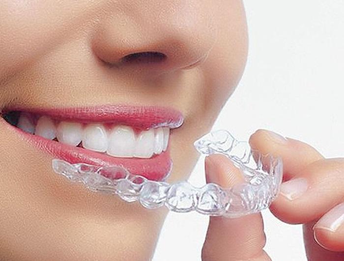 Mỗi người chỉ dùng được máng tẩy riêng vì có mẩu răng khác nhau.