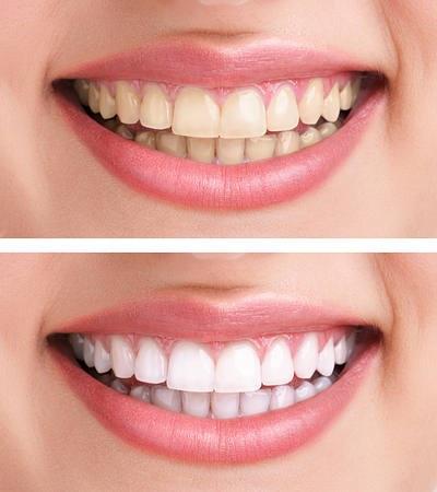 Răng trắng hơn nhờ baking soda.