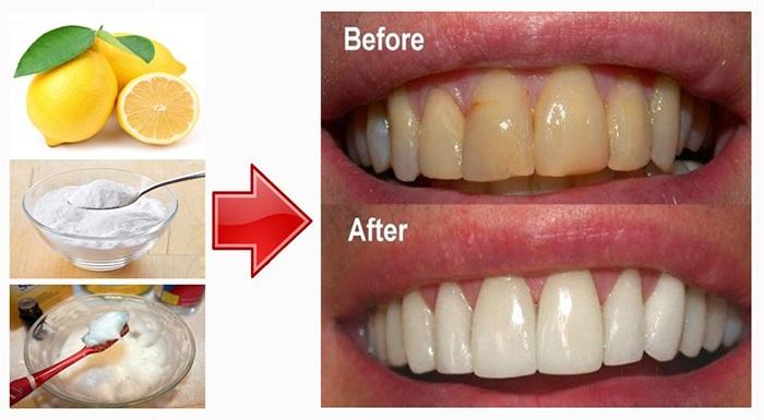 Cách làm trắng răng an toàn từ Baking soda – Bí quyết tẩy trắng răng hiệu quả, loại bỏ vết ố vàng rất tốt