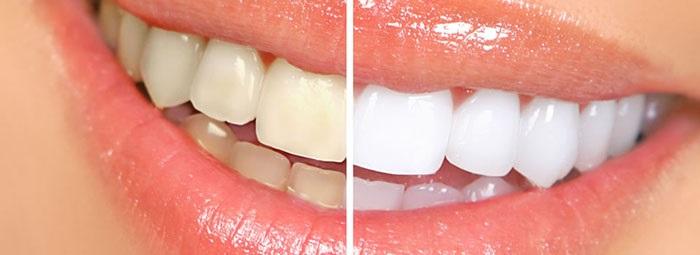 Hàm răng có sự cải thiện rõ rệt sau khi làm trắng răng bằng Oxy già.