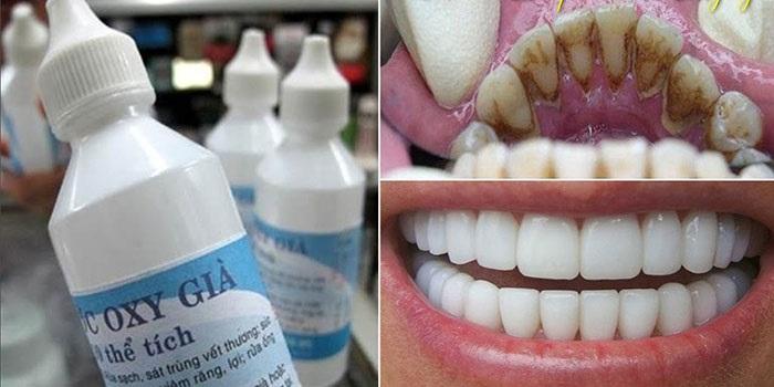 Oxy già làm trắng răng hiệu quả.