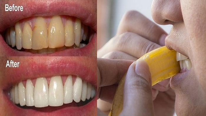 Cách làm trắng răng đơn giản bằng vỏ chuối giúp răng chắc khỏe hơn.