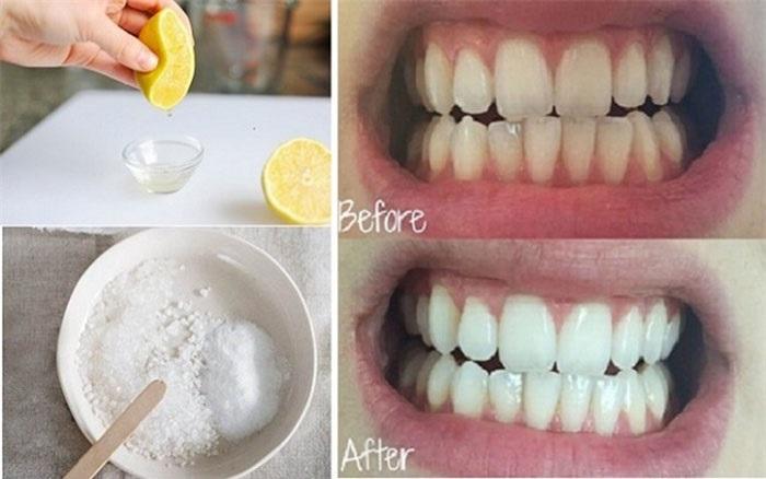 Cách làm trắng răng đơn giản bằng muối biển và chanh