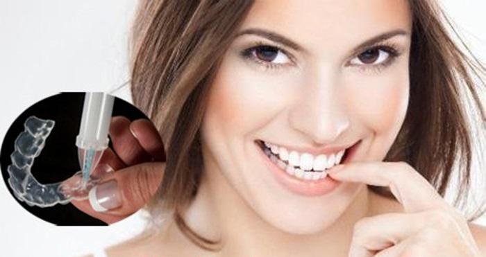 Cách làm trắng răng hiệu quả tại nhà dùng thuốc tẩy theo chỉ định của bác sĩ.