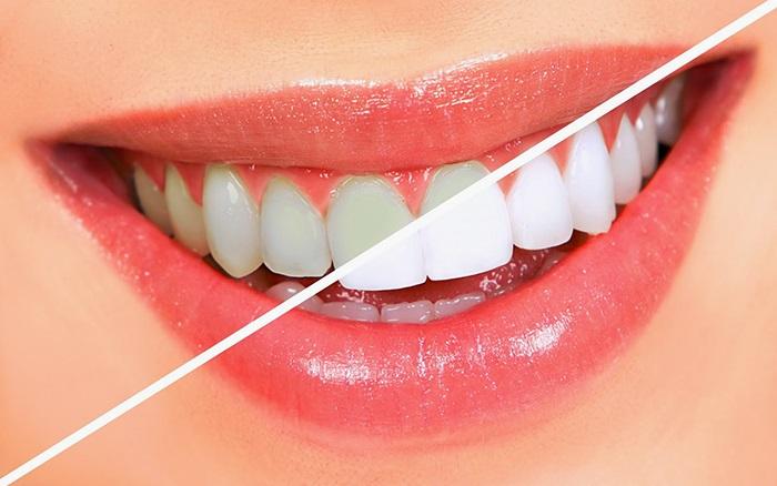 Sau khi tẩy răng bạn sẽ có được hàm răng trắng sáng hơn.