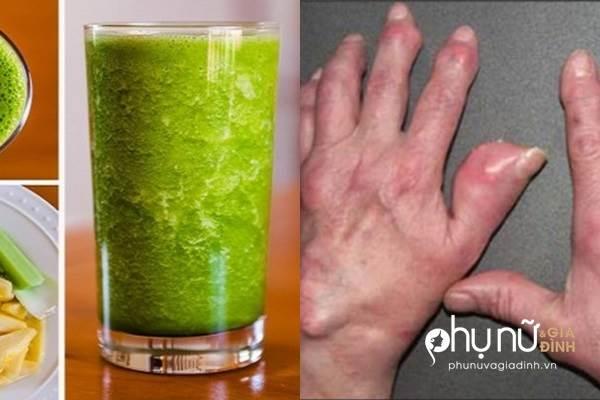 Mỗi ngày 1 ly này, đào thải axit uric khỏi máu cấp tốc, cả đời không lo bệnh gút - Ảnh 1