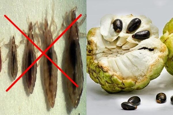 Dùng hạt na để trị chấy cho người lớn hiệu quả nhanh