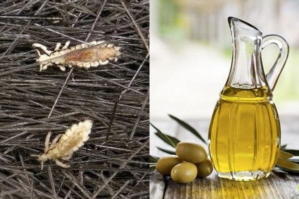 Cách trị chấy hiệu quả nhanh chóng với dầu oliu