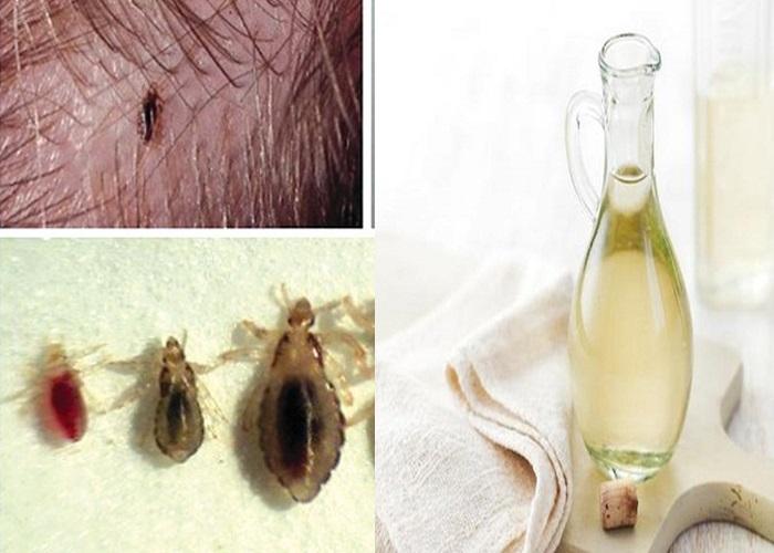 Cách trị chấy rận bằng dấm tiêu diệt các loại ký sinh trùng hiệu quả.