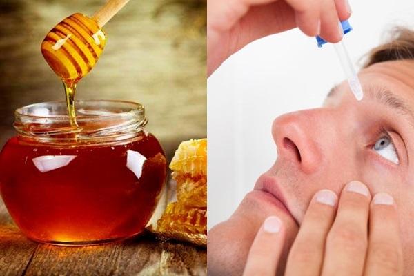 Đây là cách trị khô mắt tự nhiên nhanh và an toàn nhất tại nhà