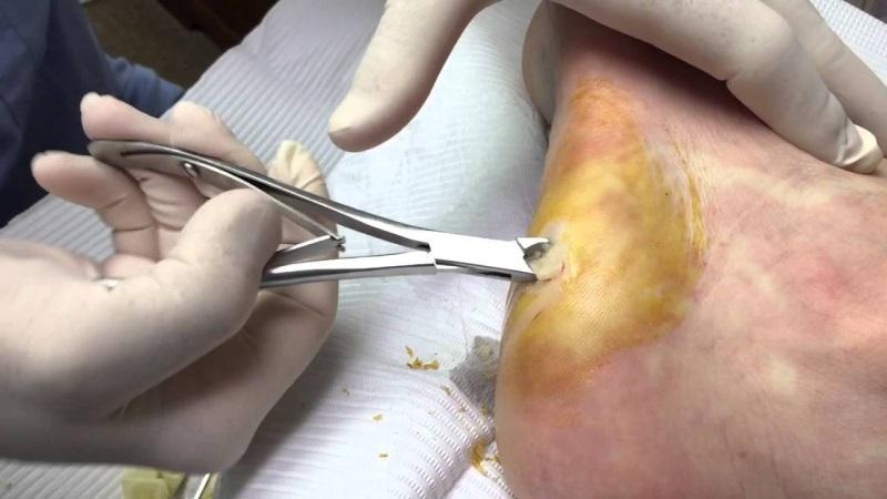 Cách trị mụn cóc dưới lòng bàn chân thông qua phẫu thuật tiết kiệm thời gian