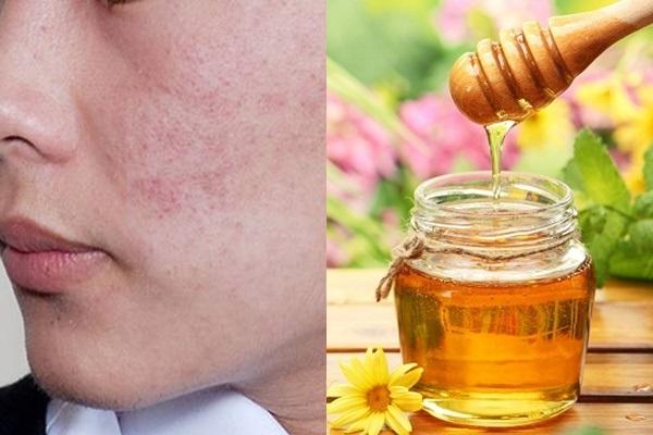 Cách trị mụn thâm đỏ hiệu quả với mật ong