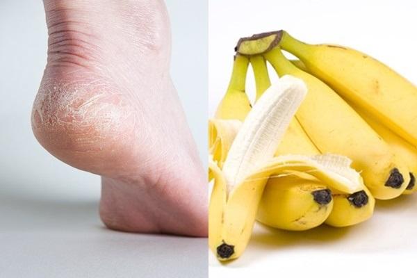 Trị nứt gót chân tại nhà hiệu quả mà đơn giản chỉ với chuối