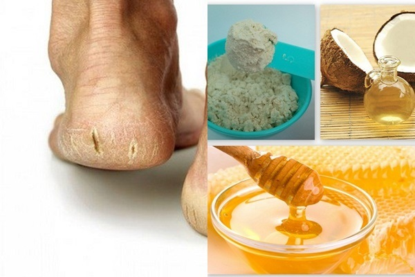 Cách trị nứt gót chân công hiệu cao từ cám gạo