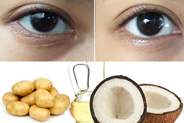 Kết hợp dầu dừa và khoai tây trị thâm quầng mắt hiệu quả cao