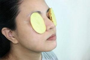 Dùng khoai tây giúp trị thâm quầng mắt nhanh và hiệu quả