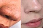 Cắt đôi quả chanh rồi chà lên vài vòng, sau 5 phút mụn đầu đen nhiều kín mũi cũng phải chui ra hết sạch