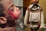 Sốc: Bé trai 7 tuổi bị cha và mẹ kế hành hạ đến chết, đem xác cho lợn ăn