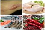 Top 8 loại thực phẩm đừng dại ăn nếu không muốn bị sẹo lồi