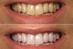 Lấy 1 nắm lá húng quế rồi làm theo cách này, cao răng rụng ra từng mảng, răng trắng sáng như gương chẳng cần đi nha sĩ
