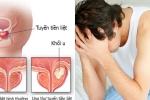 Lộ thủ phạm gây ung thư tuyến tiền liệt ở nam giới