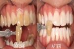 Trời ơi, có nhất thiết phải tới nha sĩ, bỏ 5 phút ngậm 1 thìa đường răng trắng như bọc sứ, môi miệng khó chịu sẽ thơm tho tức thì