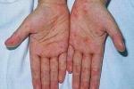 Dấu hiệu dễ nhận biết khi bị bệnh sốt xuất huyết