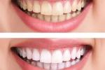 Răng trắng như bọc sứ chỉ trong 5 phút