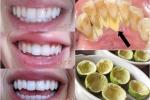 Vắt chanh đừng bỏ vỏ, cứ lấy để nhai theo cách này, cao răng bong ra từng mảng, sâu răng đau nhức khỏi ngay tức khắc mà không tốn 1 viên thuốc nào