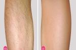 Mách bạn cách tẩy lông không đau rát từ chanh + muối, hiệu quả đến 99,9%
