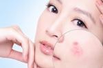 Cách chăm sóc da mặt bị mụn đúng cách bạn nhất định sẽ hài lòng
