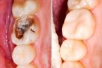 Đặc trị sâu răng, nhiệt miệng, viêm nướu bằng 1 nắm lá ổi