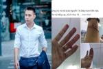 Sau khi bị chủ nợ của mẹ vây chém, hành động của Top 3 Vietnam Idol 2014 Đông Hùng khiến nhiều người chua xót