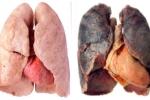 Uống cốc nước này vào hút thuốc lá lâu năm cỡ nào phổi cũng được thanh lọc
