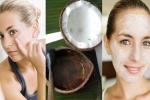 Tiết lộ cách trị sẹo thâm đỏ giúp da đẹp mịn màng hiệu quả vạn người mê