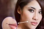 Bật mí cách trị sẹo thâm sau khi tẩy nốt ruồi hiệu quả cao cho người điều trị